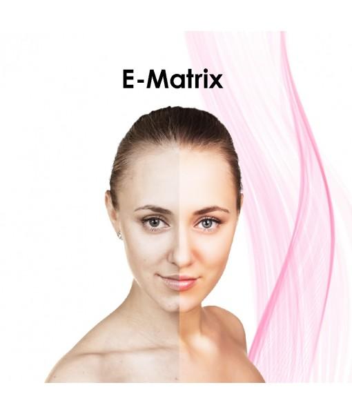 E-MATRIX