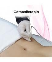 Carboxiterapia